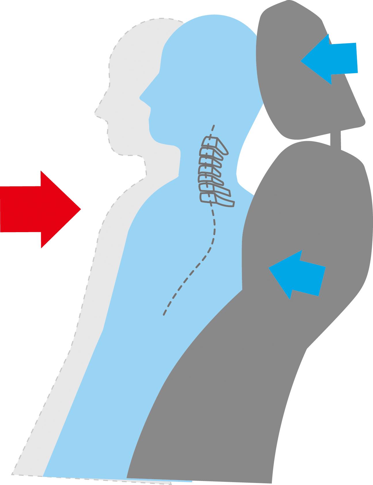Asientos delanteros que reducen el latigazo cervical